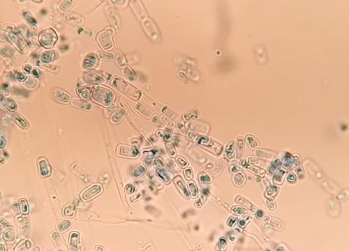 Arthosporen
