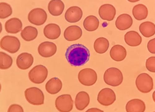 Lymphozyt