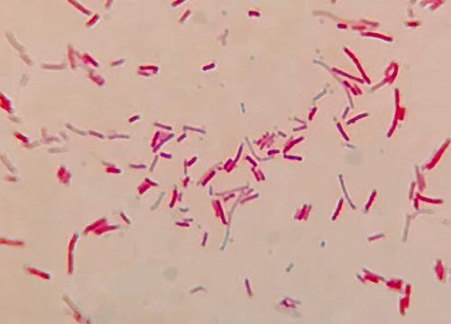 Escherichia coli