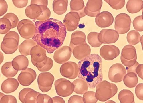 Eosinophiler und Neutrophiler Granulozyt
