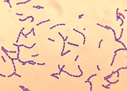 Streptococcus viridans