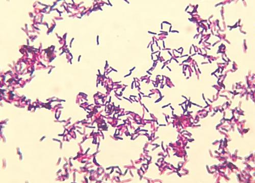 Corynebacterium diphteriae mitis